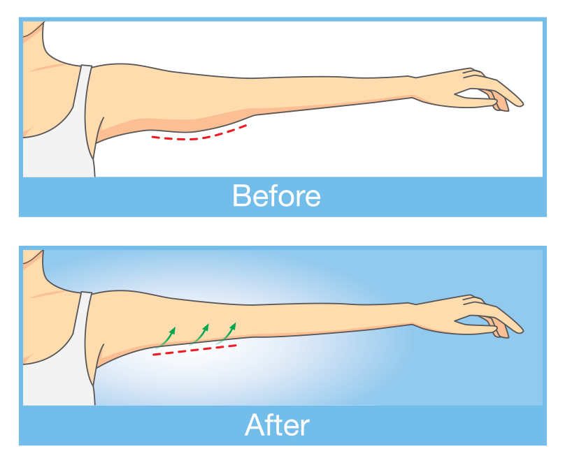Before and after arm lift illustrations