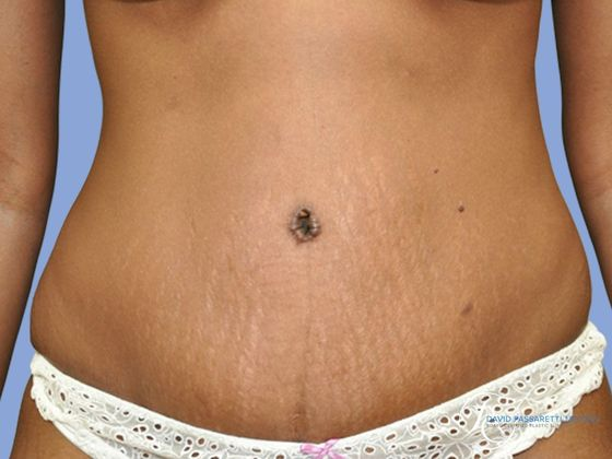 Abdominoplasty before & after photo