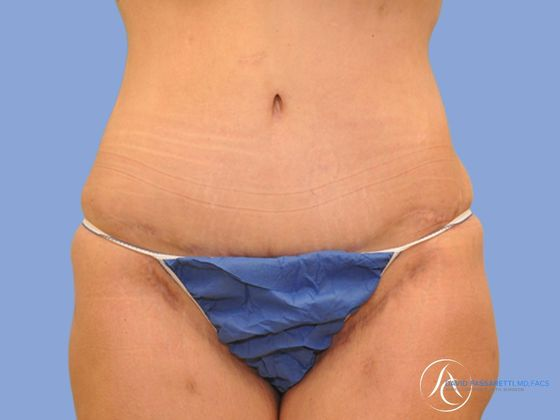 Post bariatric surgery before & after photo