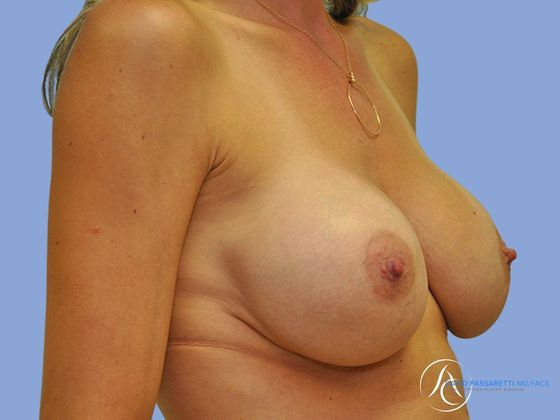Breast implant revision before & after photo