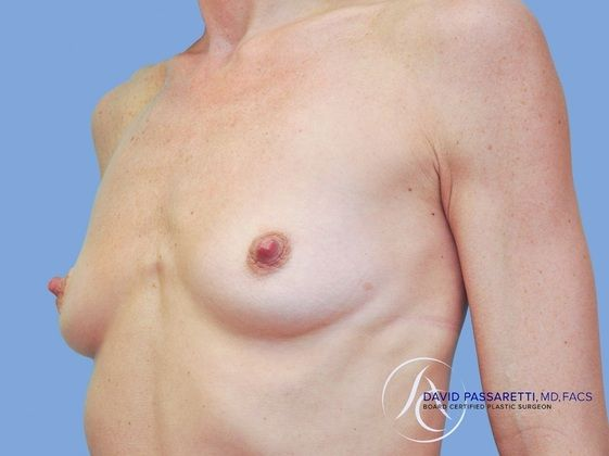 Breast reconstruction before & after photo