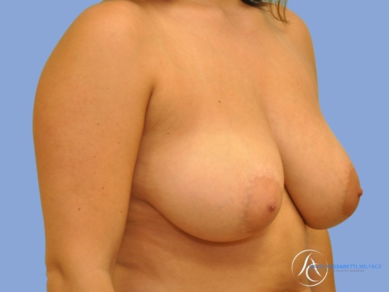 Breast reduction before & after photo